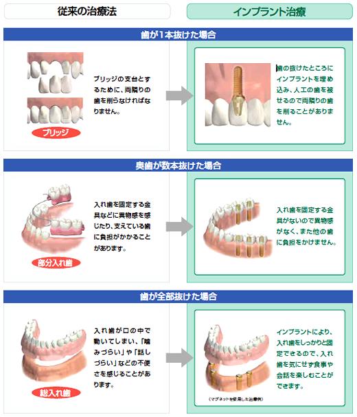 従来の治療法とインプラント治療の比較